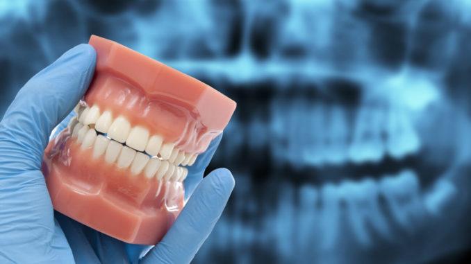 Скрежет зубами часто диагностируют у детей, хотя и взрослые бывает страдают от него. Симптом появляется по ряду причин, в том числе из-за особенностей физиологического развития, психоэмоционального состояния или как следствие заболевания, например, глистной инвазии.