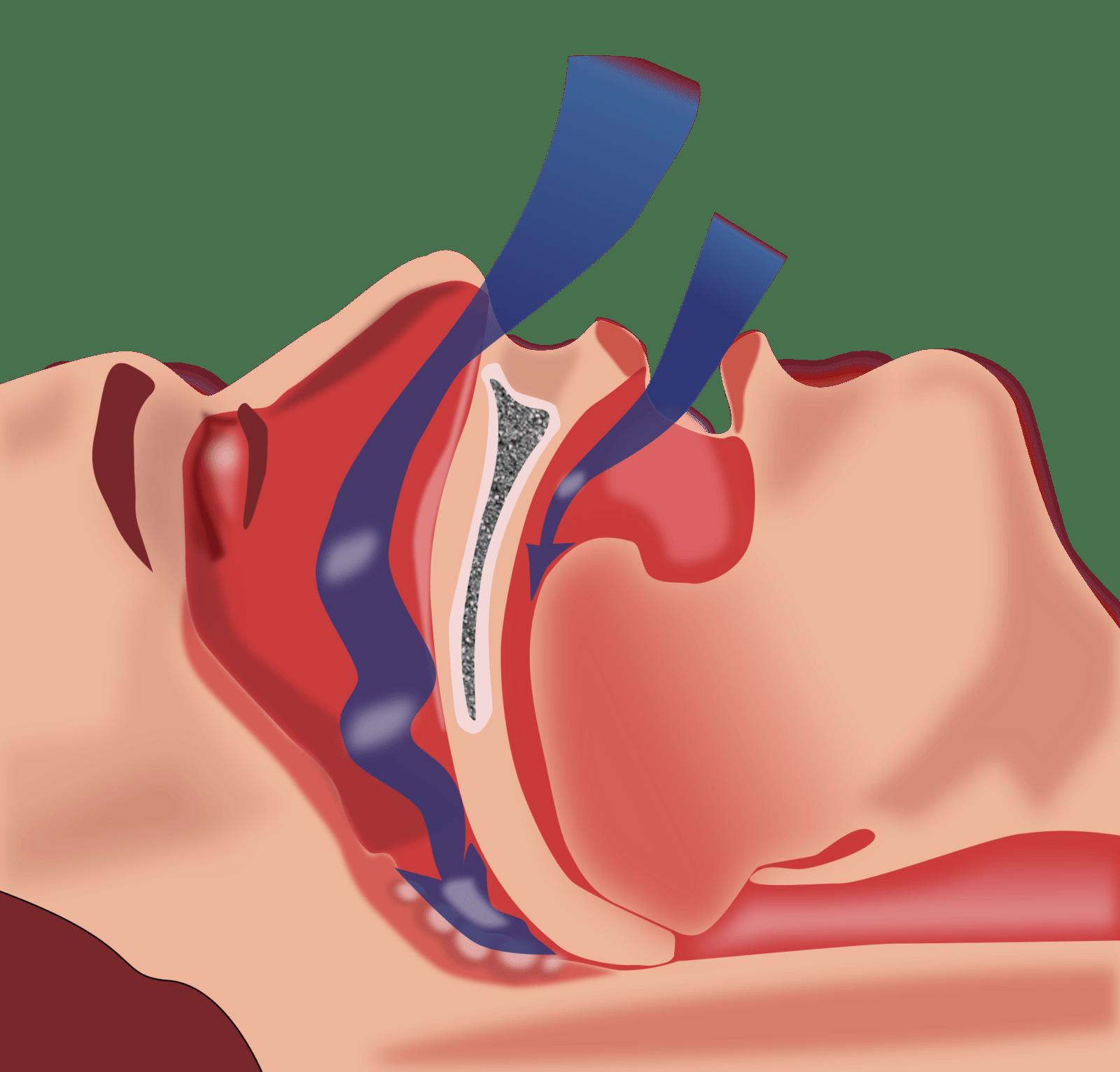 Возможна кратковременная задержка апноэ; состояние опасно тем, что протекает незаметно для человека, когда он спит; обычно при длительной задержке дыхания (на 1 – 2 минуты) центральная нервная система (ЦНС) дает сигнал к просыпанию; но иногда что-то может не сработать, от длительного кислородного голодания пострадают жизненно важные центры (дыхательный, сосудодвигательный); апноэ во время сна может привести к гибели человека