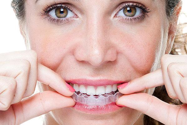 Зубной врач изготавливает специальные ночные каппы индивидуально для пациента согласно слепку его челюсти.