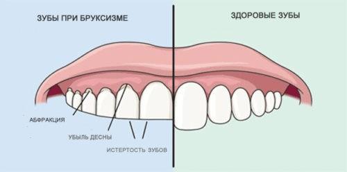 На скрежетание зубами жалуются родители каждого второго ребенка.